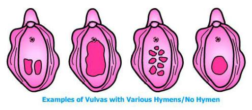 Examples of Vulvas and Various Hymens/No Hymen